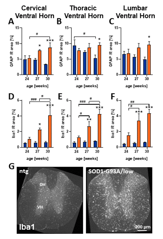 Robust neuroinflammation