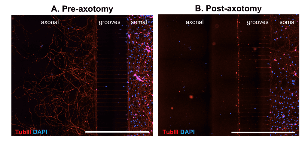 axonal injury and growth